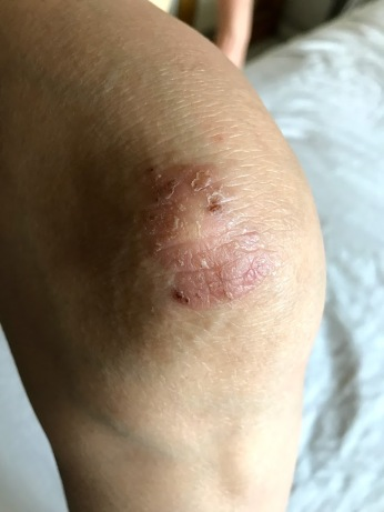 My mother's stubborn skin wound before applying tallow.