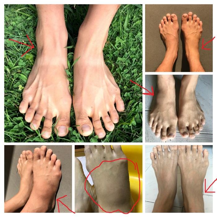 Foot inflammation progress