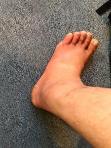 Inflammed feet